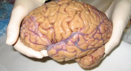 Image result for real human brain anatomy